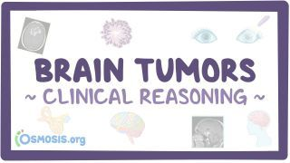 Video poster for Clinical Reasoning: Brain tumors