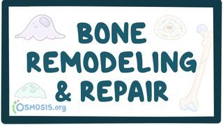 Video poster for Bone remodeling and repair