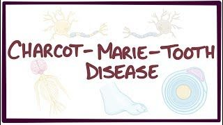 Video poster for Charcot-Marie-Tooth disease
