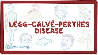 Video poster for Legg-Calve-Perthes disease