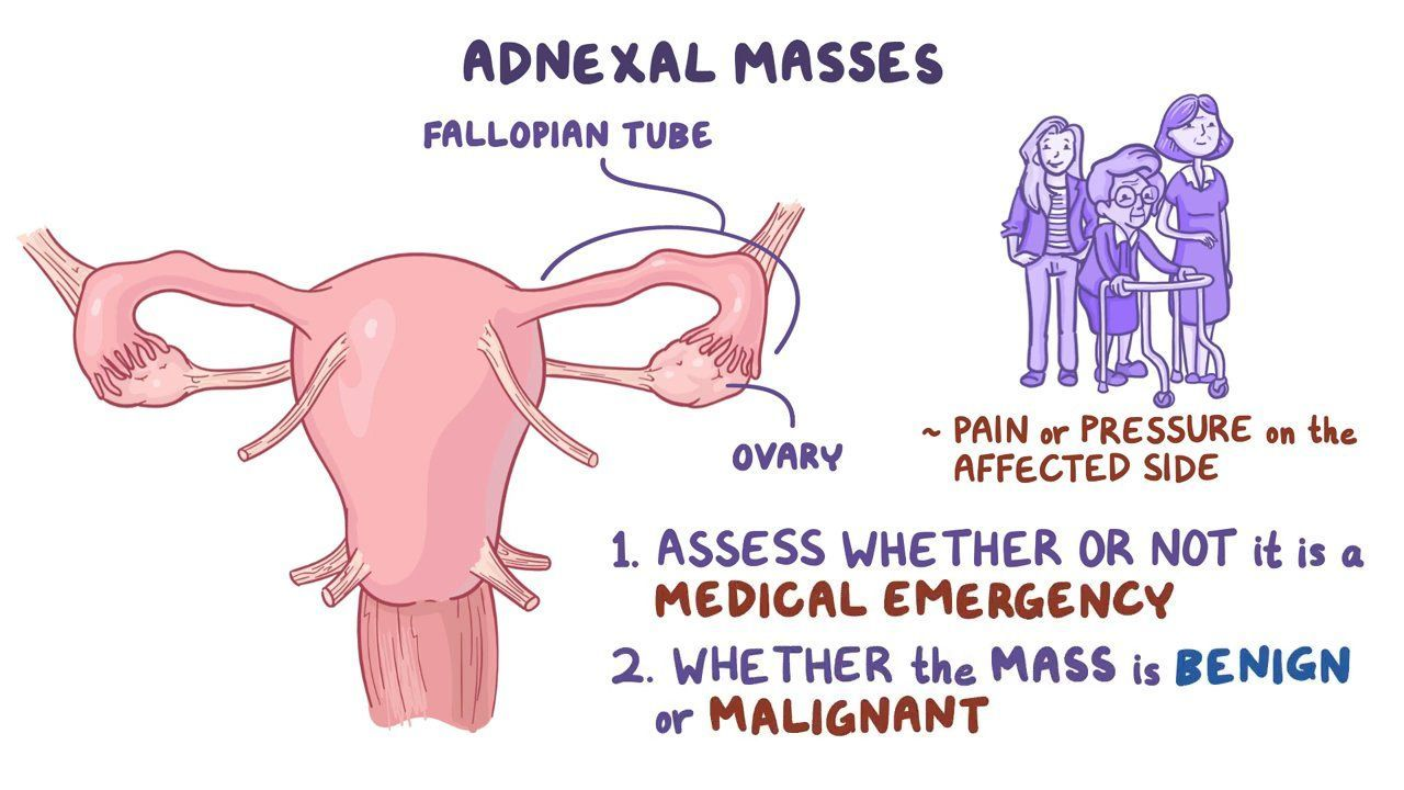 ovarian cysts cancer and other adnexal masses clinical