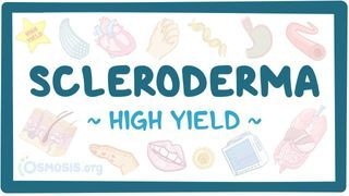 Video poster for High Yield: Scleroderma