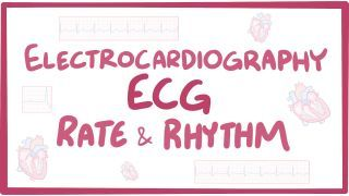 Video poster for ECG rate and rhythm