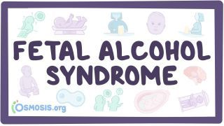 Video poster for Fetal alcohol syndrome