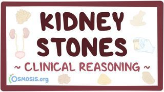 Video poster for Clinical Reasoning: Kidney stones
