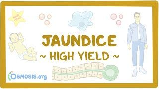 Video poster for High Yield: Jaundice