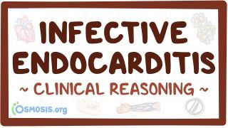 Video poster for Clinical Reasoning: Infective endocarditis