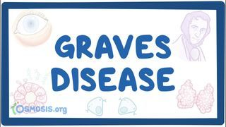 Video poster for Graves' disease