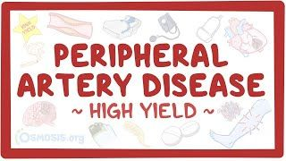 Video poster for High Yield: Peripheral artery disease