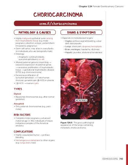 endometrial cancer osmosis panglică largă în corpul uman