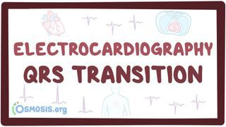 Video poster for ECG QRS transition