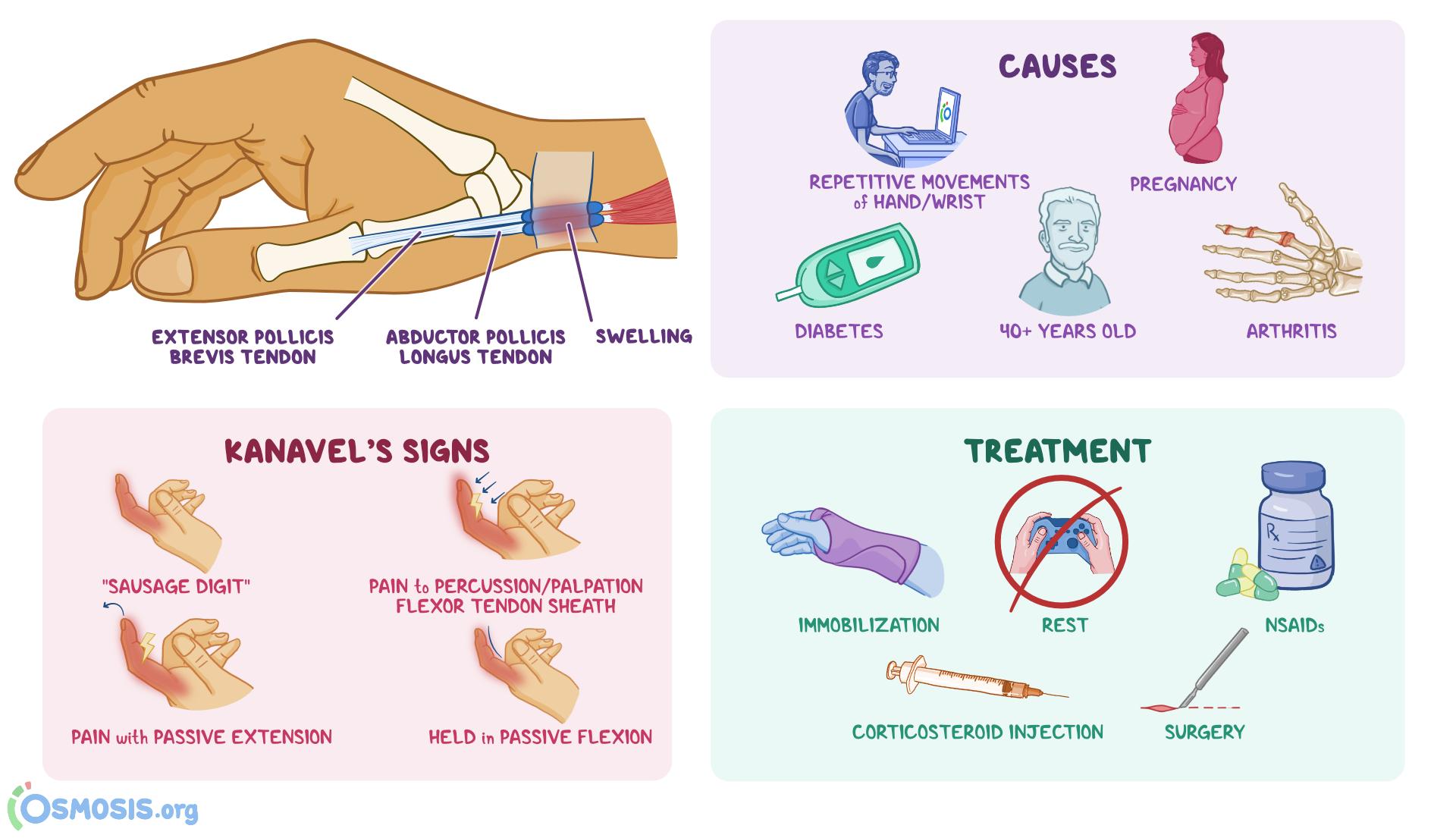 de quervain tenosynovitis symptoms
