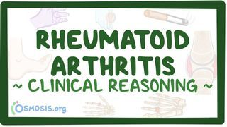 Video poster for Clinical Reasoning: Rheumatoid arthritis