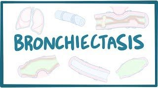 Video poster for Bronchiectasis