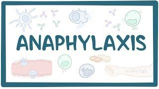 Video poster for Anaphylaxis