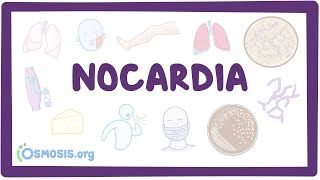 Video poster for Nocardia