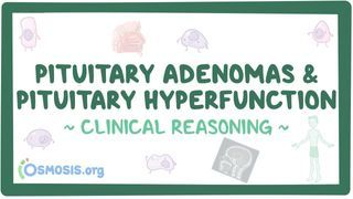 Video poster for Clinical Reasoning: Pituitary adenomas and pituitary hyperfunction