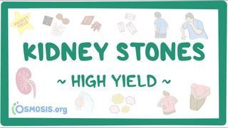 Video poster for High Yield: Kidney stones