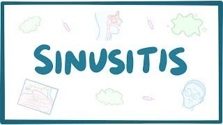 Video poster for Sinusitis