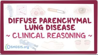 Video poster for Clinical Reasoning: Diffuse parenchymal lung disease