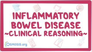 Video poster for Clinical Reasoning: Inflammatory bowel disease
