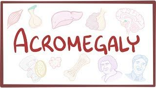 Video poster for Acromegaly