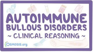 Video poster for Clinical Reasoning: Autoimmune bullous disorders