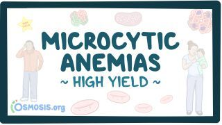 Video poster for High Yield: Microcytic anemias