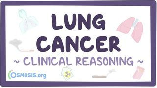 Video poster for Clinical Reasoning: Lung cancer