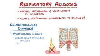 Video poster for Respiratory acidosis