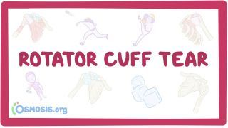 Video poster for Rotator cuff tear