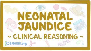 Video poster for Clinical Reasoning: Neonatal jaundice