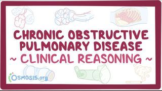 Video poster for Clinical Reasoning: Chronic Obstructive Pulmonary Disease
