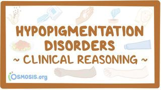 Video poster for Clinical Reasoning: Hypopigmentation