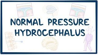 Video poster for Normal pressure hydrocephalus