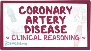 Video poster for Clinical Reasoning: Coronary artery disease