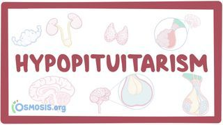 Video poster for Hypopituitarism