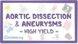 Video poster for High Yield: Aortic dissection and aneurysms