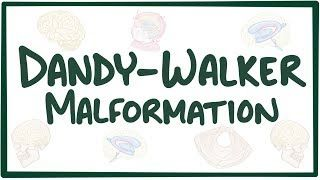 Video poster for Dandy-Walker malformation