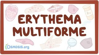 Video poster for Erythema multiforme