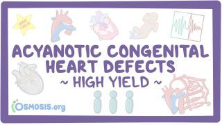 Video poster for High Yield: Acyanotic congenital heart defects