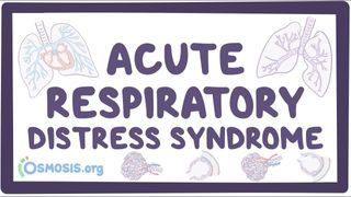 Video poster for Acute respiratory distress syndrome