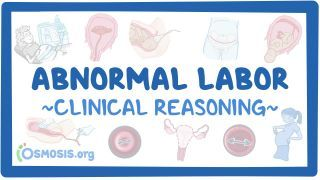 Video poster for Clinical Reasoning: Abnormal labor