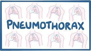 Video poster for Pneumothorax