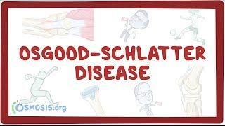 Video poster for Osgood-Schlatter disease
