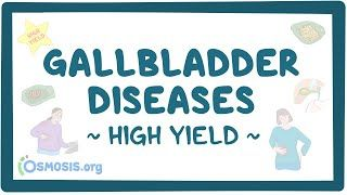 Video poster for High Yield: Gallbladder diseases