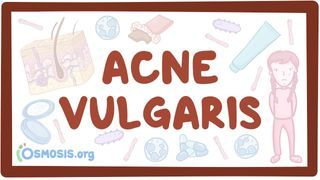 Video poster for Acne vulgaris