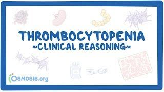 Video poster for Clinical Reasoning: Thrombocytopenia