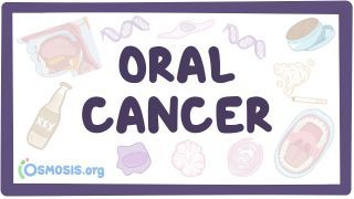 Video poster for Oral cancer