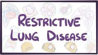 Video poster for Restrictive lung diseases